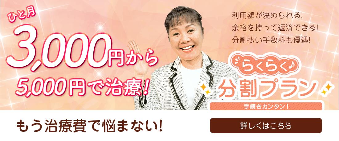 らくらく分割プラン 月3,000円~