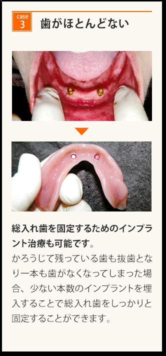 歯がほとんどない