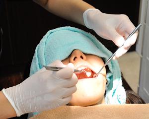術前、術後のインプラントケア(お口の中の管理