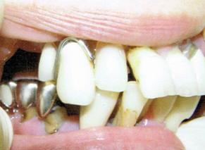 歯槽膿漏により歯根が露出している状態