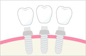 3歯補うために3本のインプラント埋入が必要になる