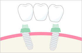 2本のインプラントで3歯分の歯を補うことができる